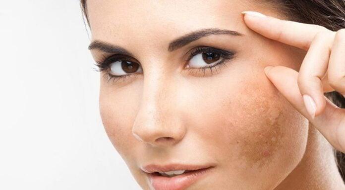 Cara Bersihkan Wajah Dari Flek Hitam